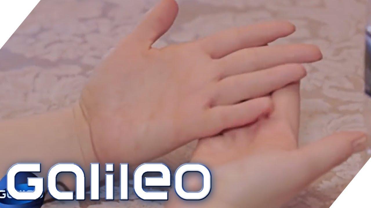 Diese Frau besitzt keine Fingerabdrücke | Galileo | ProSieben