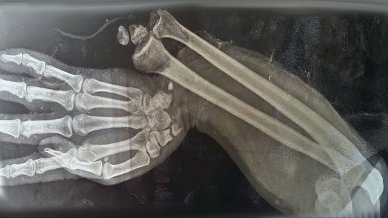 Chłopiec zjadł na śniadanie 150 witamin do żucia i oto co stało się z jego kośćmi