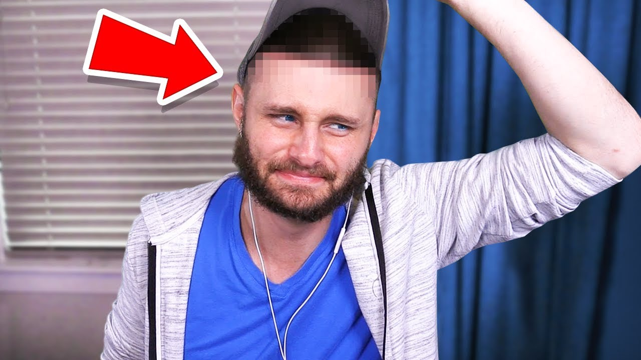 What happened with my HEAD SURGERY…
